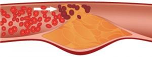 โรคผนังหลอดเลือดแดงแข็ง
